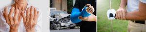 tac hand injuries rehabilitation