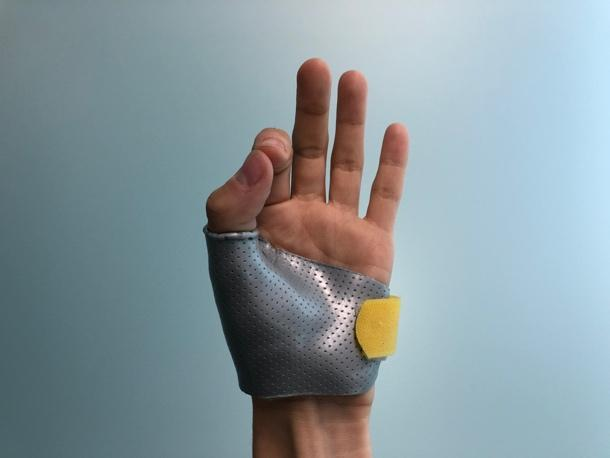 splint peninsula hand therapy